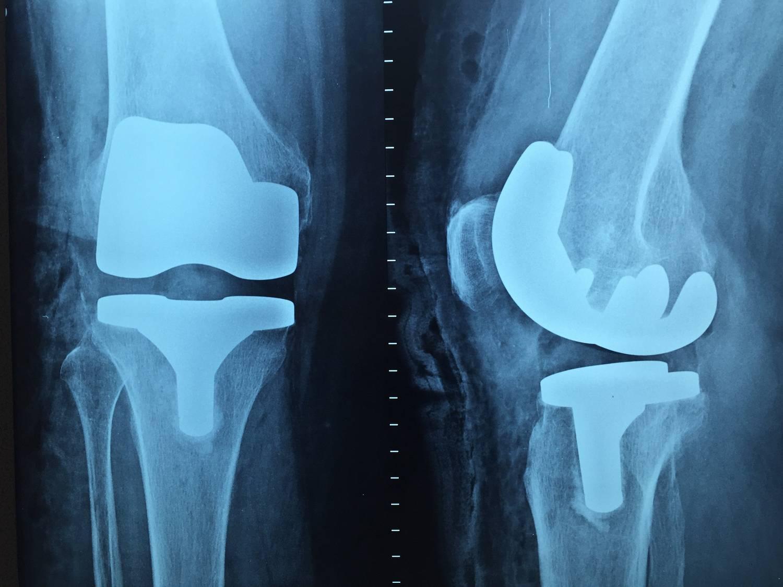 ortopeda konsultacje